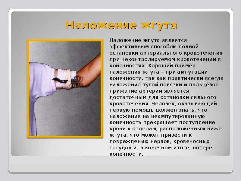 Наложение жгута Наложение жгута является эффективным способом полной остановки артериального кровоте