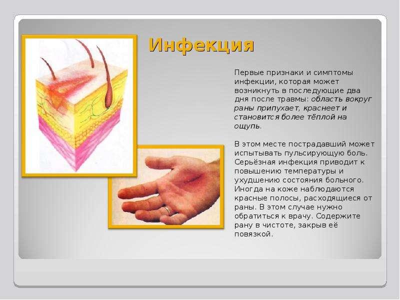 Инфекция Первые признаки и симптомы инфекции, которая может возникнуть в последующие два дня после т