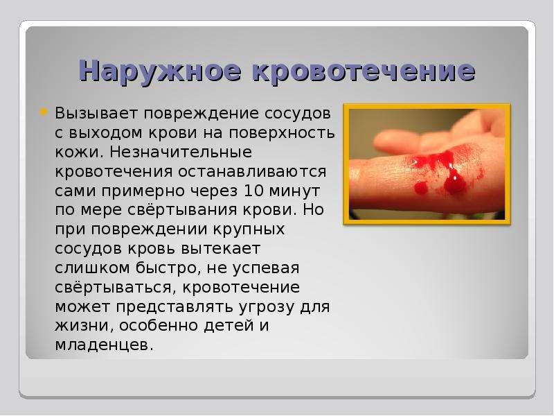 Наружное кровотечение Вызывает повреждение сосудов с выходом крови на поверхность кожи. Незначительн