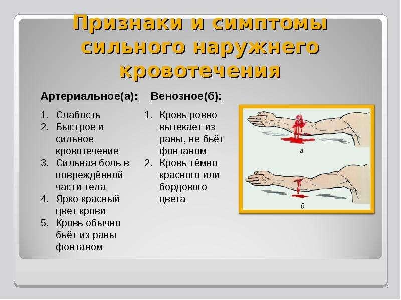 Признаки и симптомы сильного наружнего кровотечения