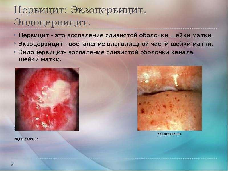 Скачать презентацию для класса Воспалительные заболев. нижнего отдела органов малого таза бесплатно