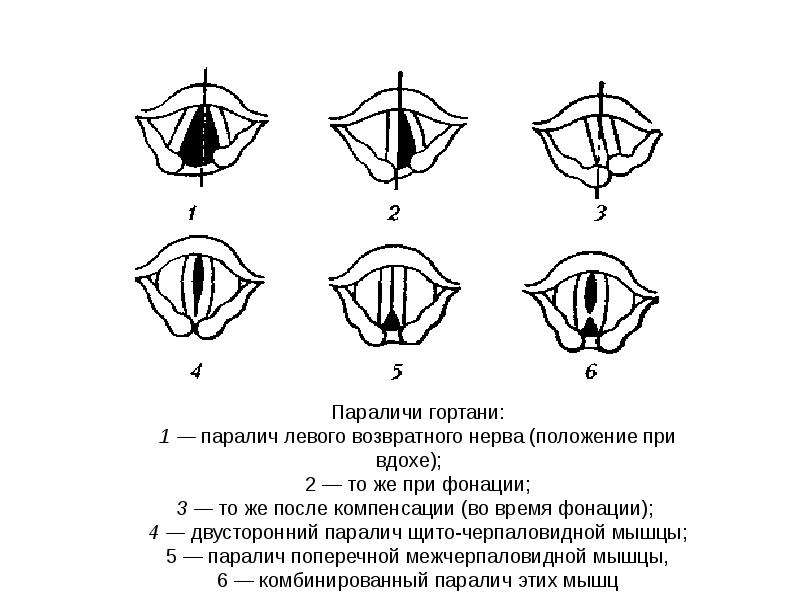 Анатомия, физиология и патология органов слуха речи и зрения, слайд 63