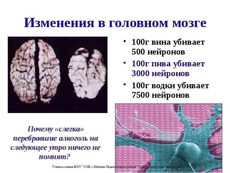 Изменения в головном мозге 100г вина убивает 500 нейронов 100г пива убивает 3000 нейронов 100г водки