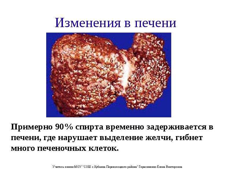 Изменения в печени Примерно 90% спирта временно задерживается в печени, где нарушает выделение желчи