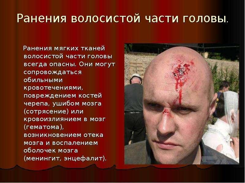 Ранения волосистой части головы. Ранения мягких тканей волосистой части головы всегда опасны. Они мо