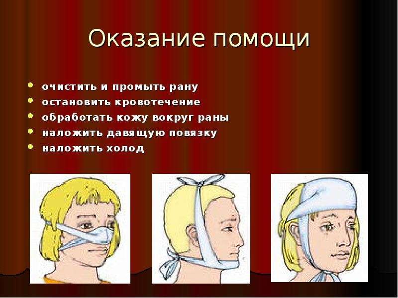 Оказание помощи очистить и промыть рану остановить кровотечение обработать кожу вокруг раны наложить