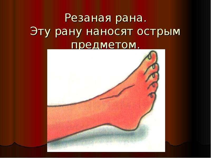 Резаная рана. Эту рану наносят острым предметом.