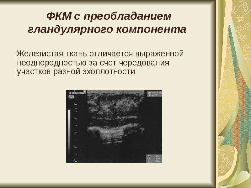 Эхографические изменения в молочных железах в различные возрастные периоды - презентация, доклад, проект скачать