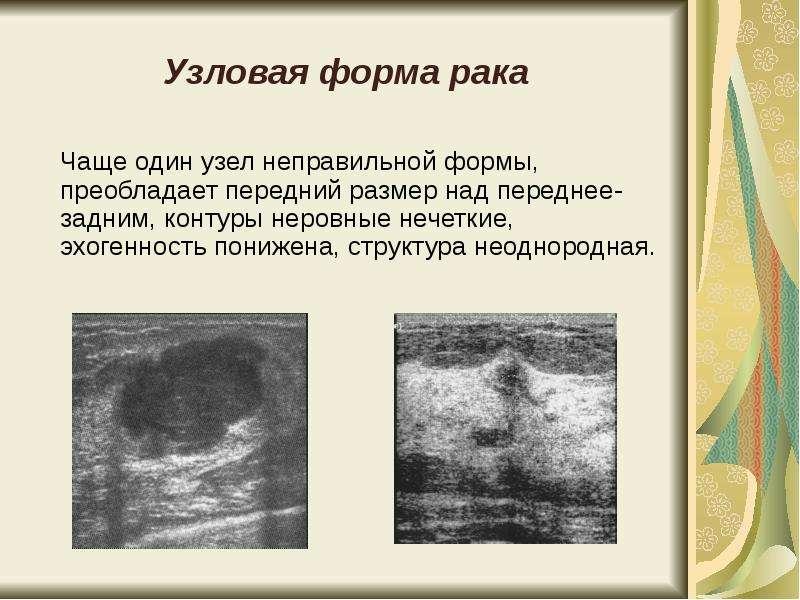 очаг неоднородной структуры в теле позвонка