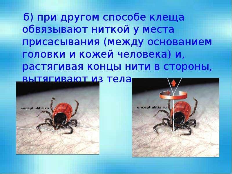 б) при другом способе клеща обвязывают ниткой у места присасывания (между основанием головки и кожей
