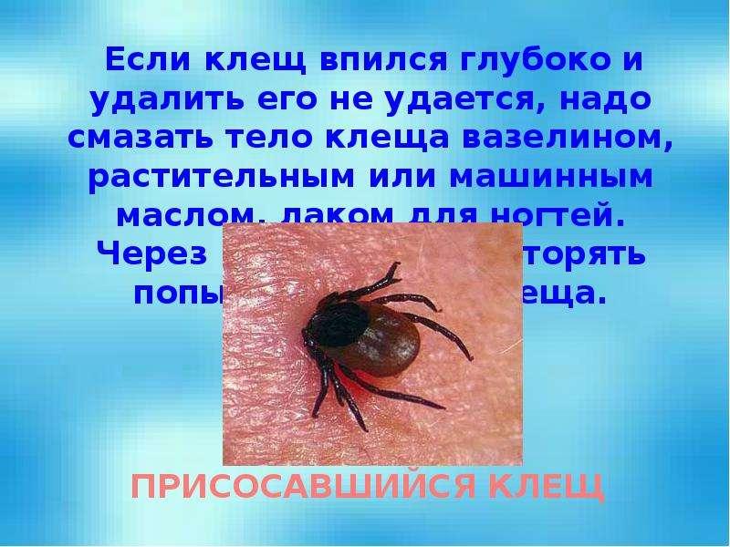 Если клещ впился глубоко и удалить его не удается, надо смазать тело клеща вазелином, растительным и