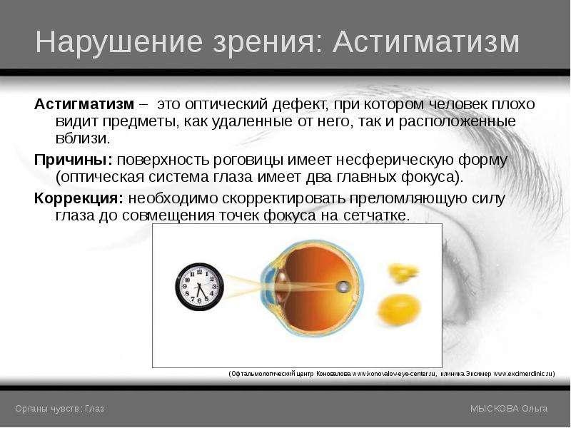 член наука о нарушении зрения большая