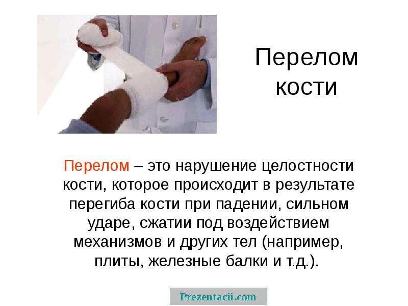 Презентация Перелом кости