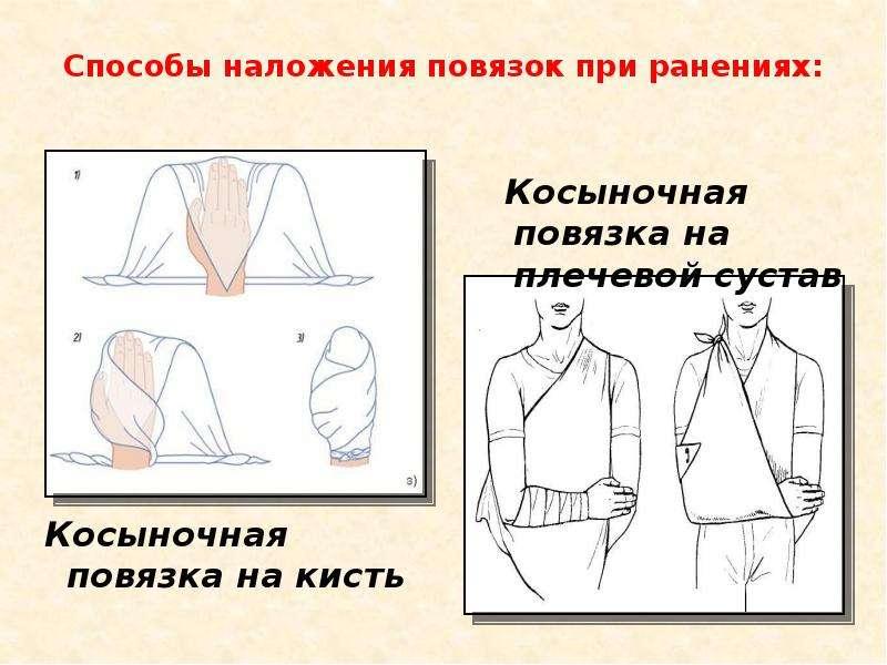Способы наложения повязок при ранениях: Косыночная повязка на кисть