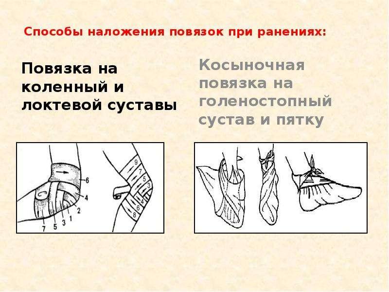 Способы наложения повязок при ранениях: Повязка на коленный и локтевой суставы