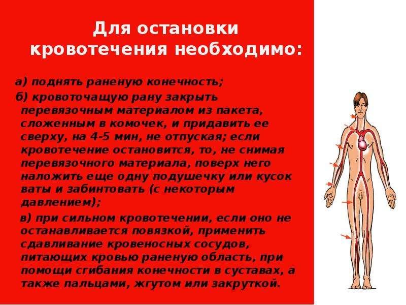 Для остановки кровотечения необходимо: а) поднять раненую конечность; б) кровоточащую рану закрыть п