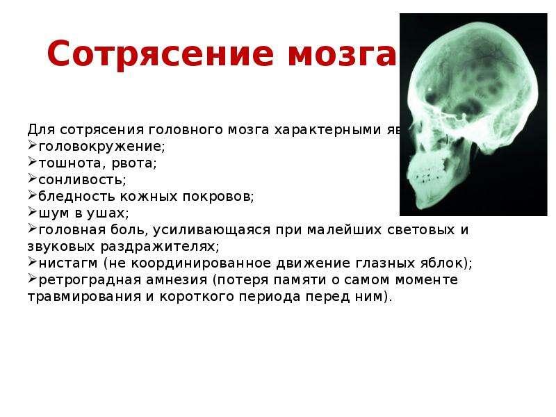 Лечение сотрясения мозга у взрослого человека дома