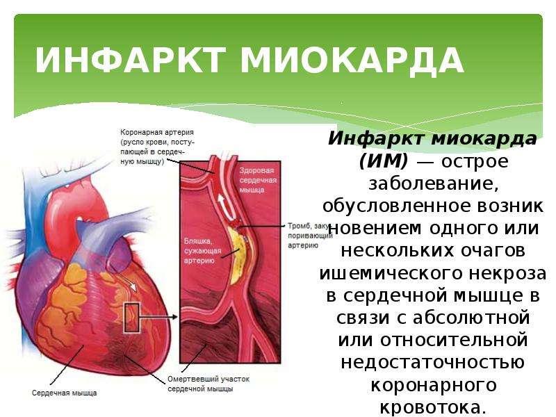 Ишемическая болезнь сердца и стенокардия: механизм, локализация боли и причина инфаркта миокарда
