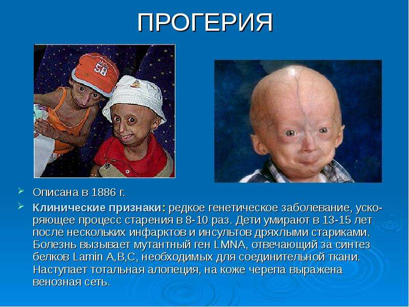 progeria report A new drug, developed for cancer, might help progeria patients live longer.