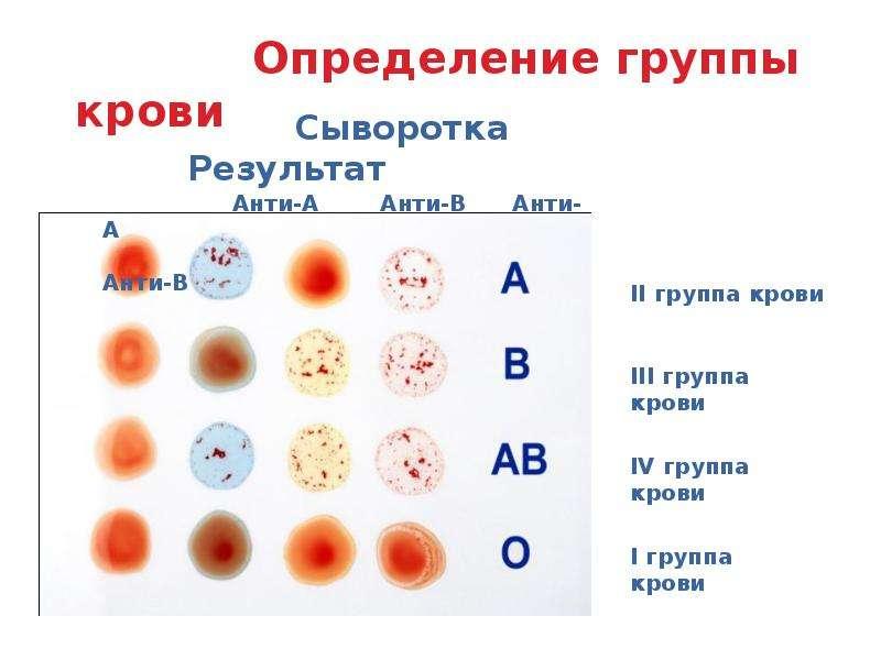 Тканевая совместимость и переливание крови, слайд 9