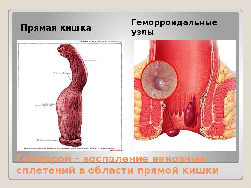 Геморрой – воспаление венозных сплетений в области прямой кишки Прямая кишка