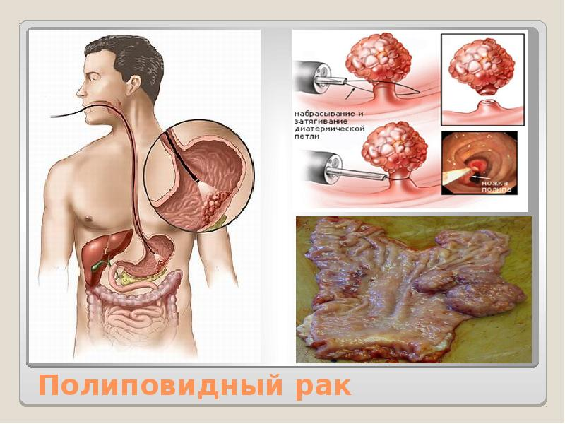 Полиповидный рак