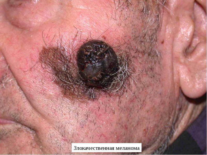 Сознания стадия последняя рака рак спутанность