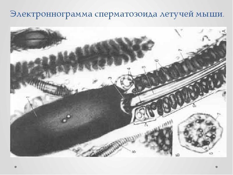 Электроннограмма сперматозоида летучей мыши.