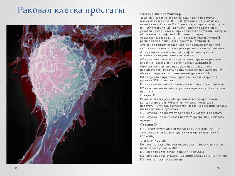 Раковая клетка простаты Система Джюит-Уайтмор В данной системе классификации рака простаты выделают
