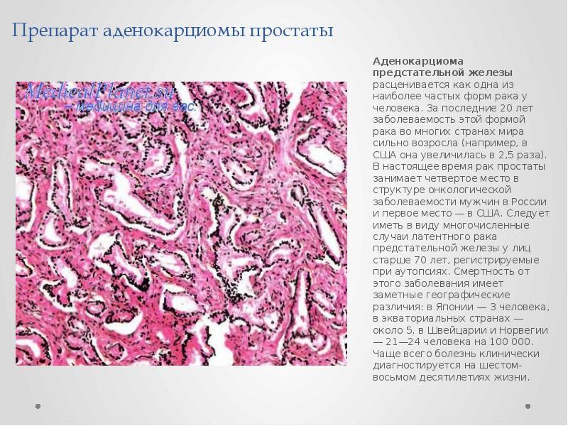 Препарат аденокарциомы простаты Аденокарциома предстательной железы расценивается как одна из наибол