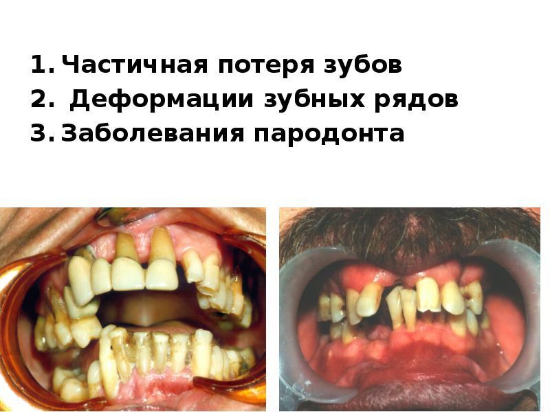 Частичная потеря зубов Частичная потеря зубов Деформации зубных рядов Заболевания пародонта