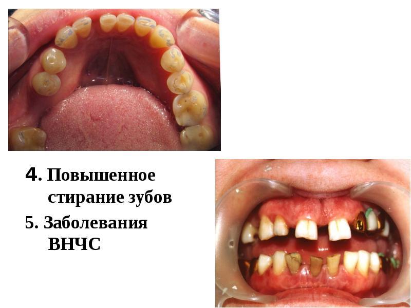 4. Повышенное стирание зубов 4. Повышенное стирание зубов 5. Заболевания ВНЧС