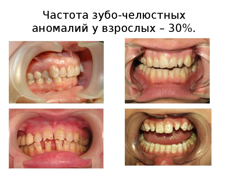Частота зубо-челюстных аномалий у взрослых – 30%.