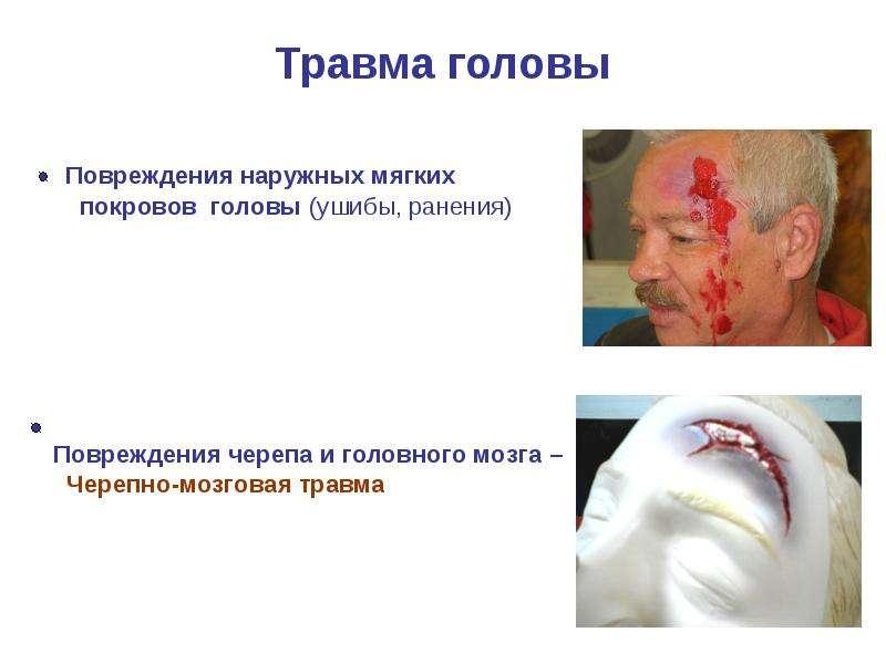 Травма головы Повреждения наружных мягких покровов головы (ушибы, ранения) Повреждения черепа и голо