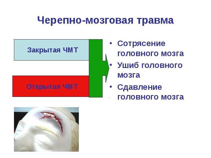 Черепно-мозговая травма Сотрясение головного мозга Ушиб головного мозга Сдавление головного мозга