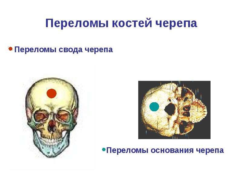 Переломы костей черепа Переломы свода черепа