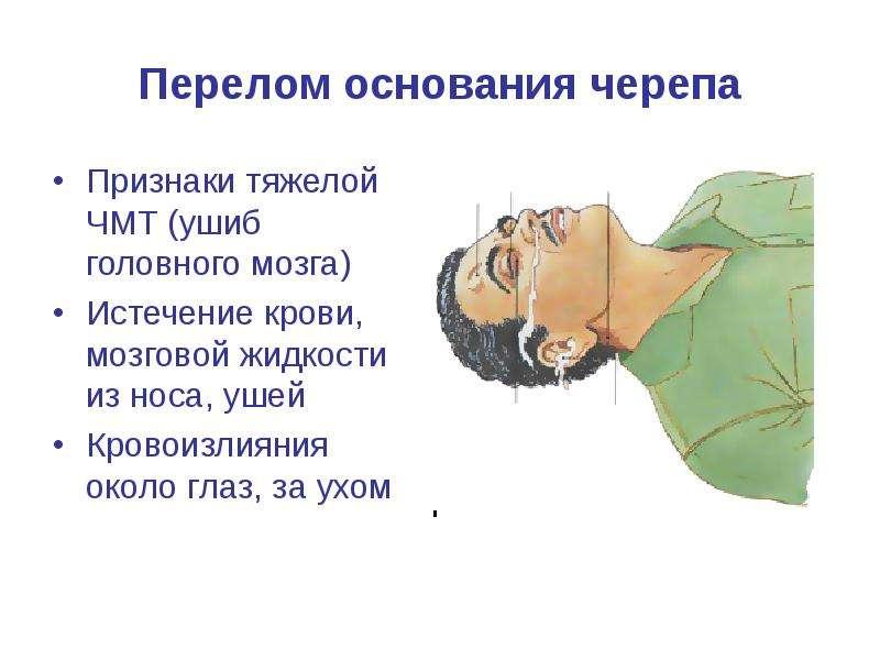 Перелом основания черепа Признаки тяжелой ЧМТ (ушиб головного мозга) Истечение крови, мозговой жидко