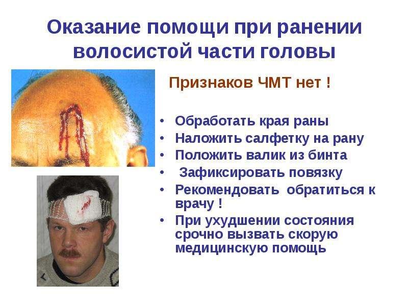 Оказание помощи при ранении волосистой части головы Признаков ЧМТ нет ! Обработать края раны Наложит