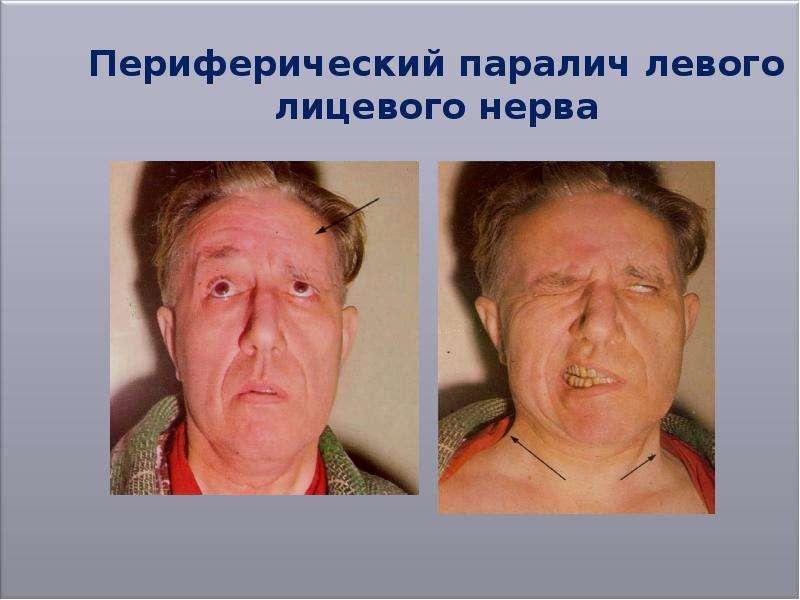 врожденный неврит лицевого нерва фото эти творения