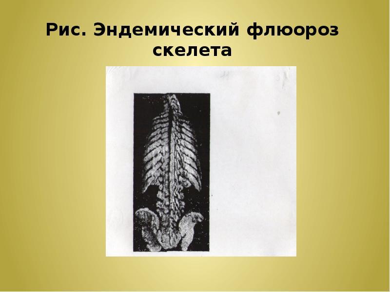 Рис. Эндемический флюороз скелета