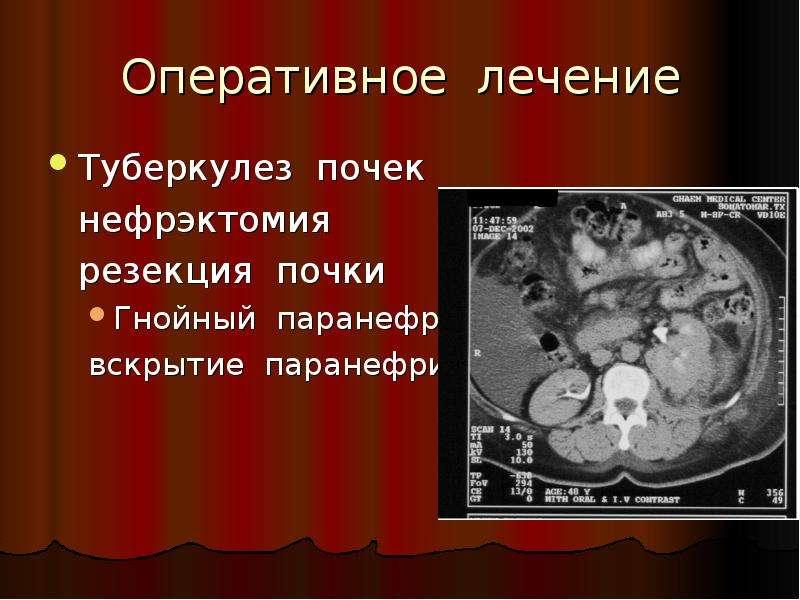 Оперативное лечение Туберкулез почек нефрэктомия резекция почки Гнойный паранефрит вскрытие паранефр