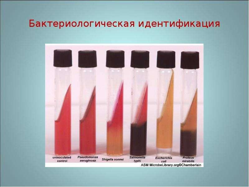 Бактериологическая идентификация