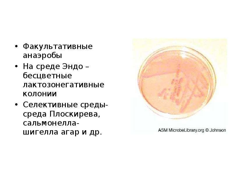 Факультативные анаэробы Факультативные анаэробы На среде Эндо – бесцветные лактозонегативные колонии