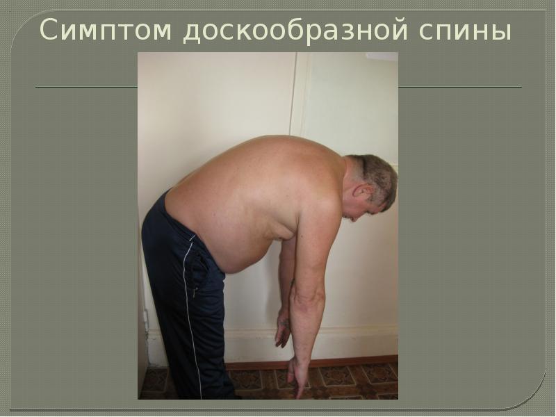 Симптом доскообразной спины