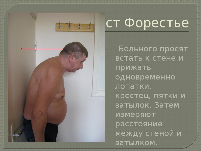 Тест Форестье Больного просят встать к стене и прижать одновременно лопатки, крестец, пятки и затыло