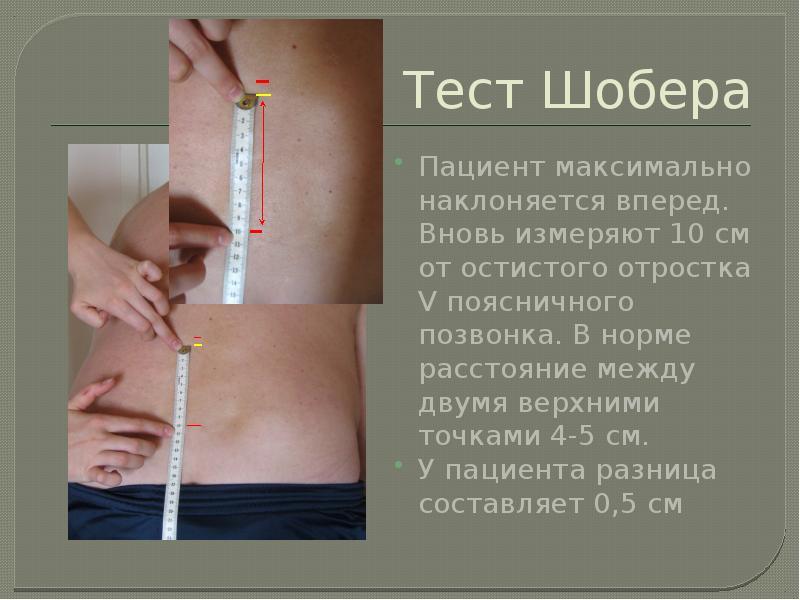 Тест Шобера Пациент максимально наклоняется вперед. Вновь измеряют 10 см от остистого отростка V поя
