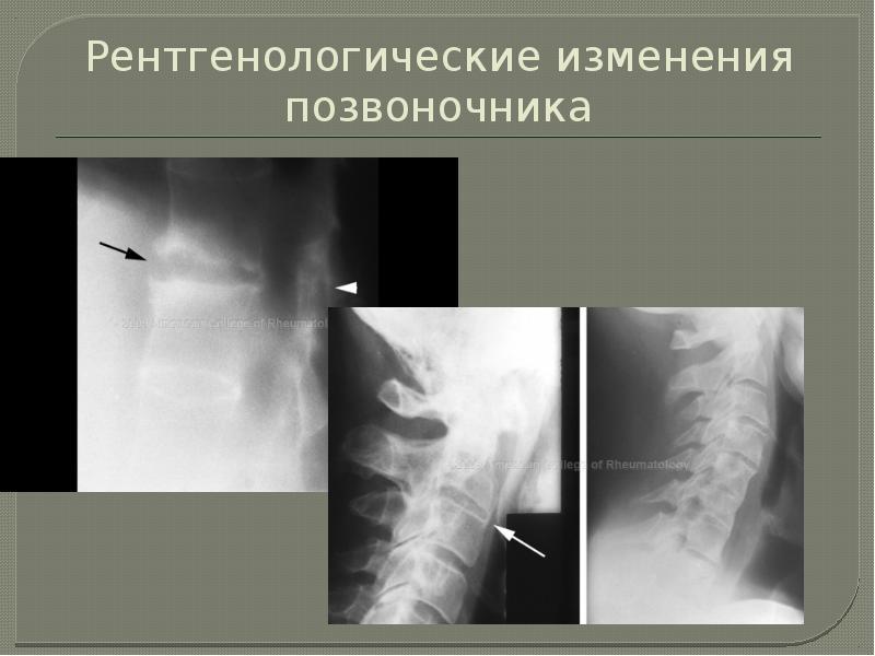 Рентгенологические изменения позвоночника