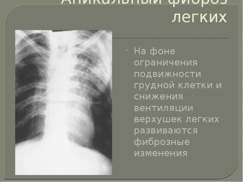 Апикальный фиброз легких На фоне ограничения подвижности грудной клетки и снижения вентиляции верхуш