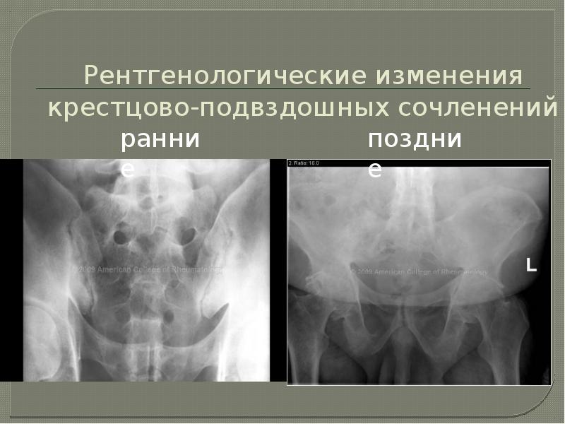 Рентгенологические изменения крестцово-подвздошных сочленений