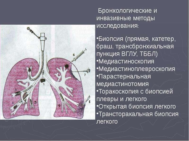 Дифференциальная диагностика диссеминированных заболеваний легких, слайд 9